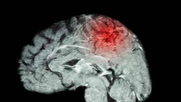 """""""뇌졸중 관련 임상시험, 여성 참여율 여전히 낮아"""""""